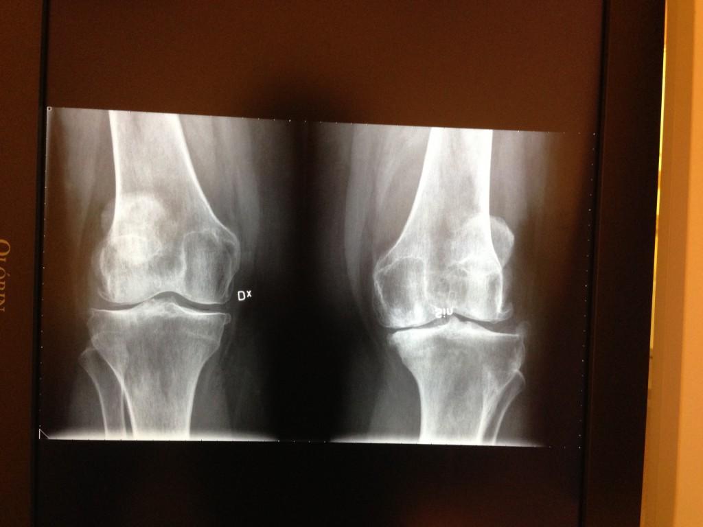 knäröntgen i juni 2013, sett framifrån. skärmbilden fotad med mobilen